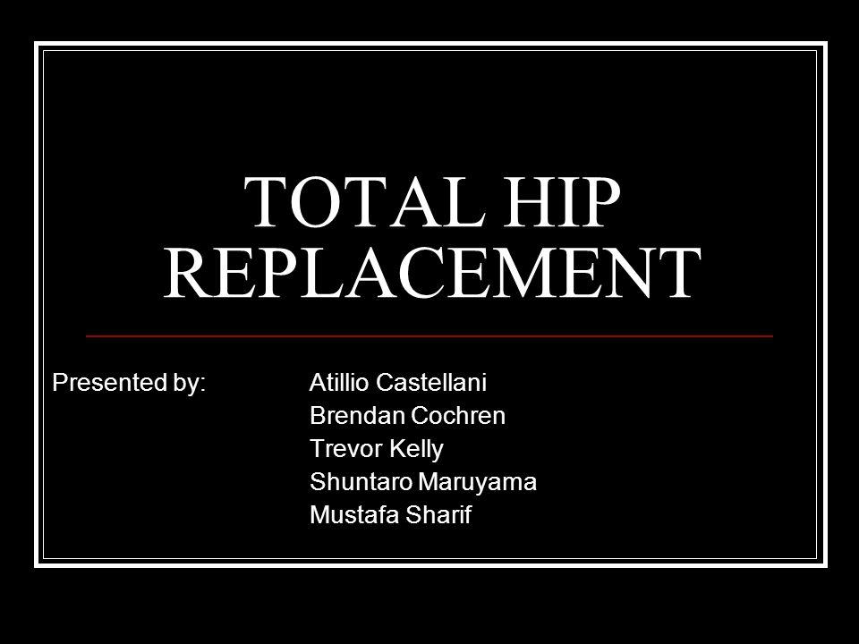 TOTAL HIP REPLACEMENT Presented by: Atillio Castellani Brendan Cochren