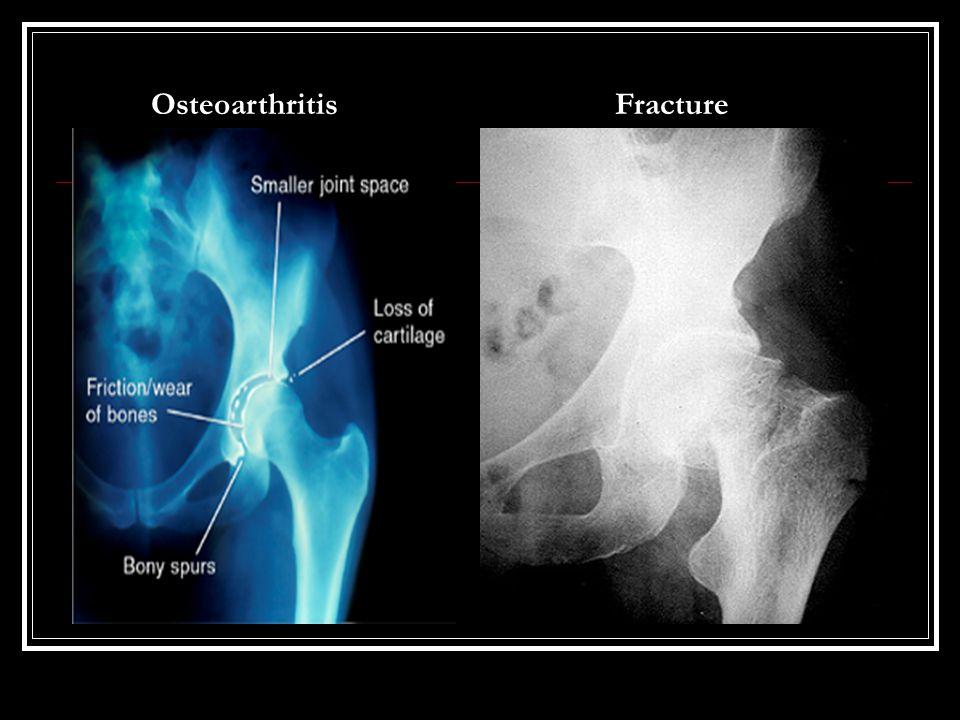 Osteoarthritis Fracture