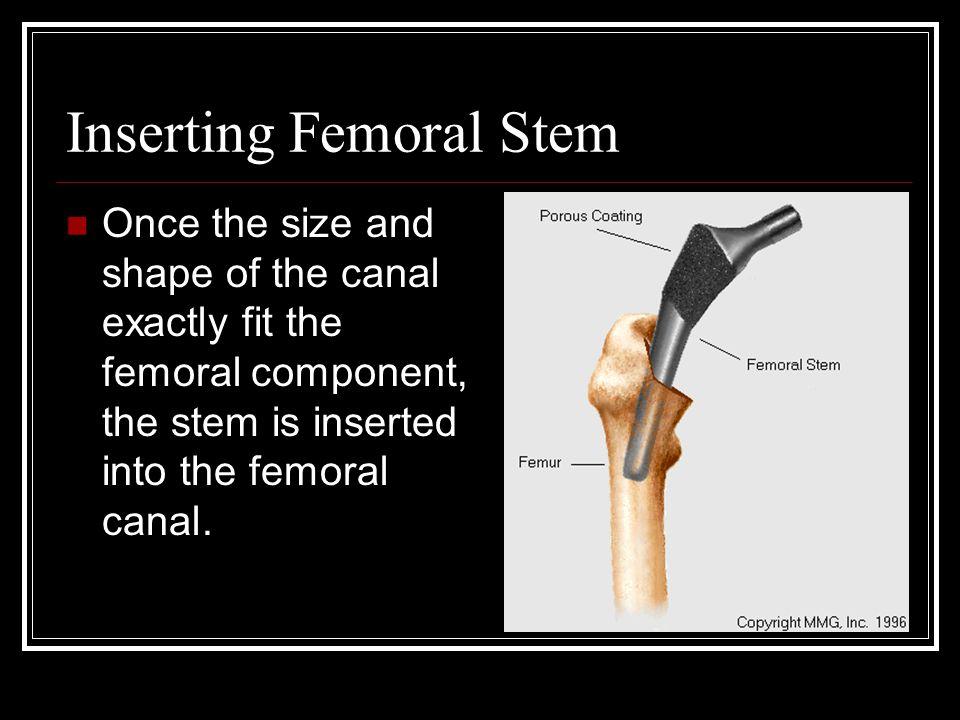 Inserting Femoral Stem