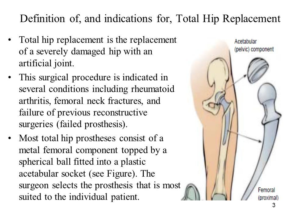 Definition of, and indications for, Total Hip Replacement
