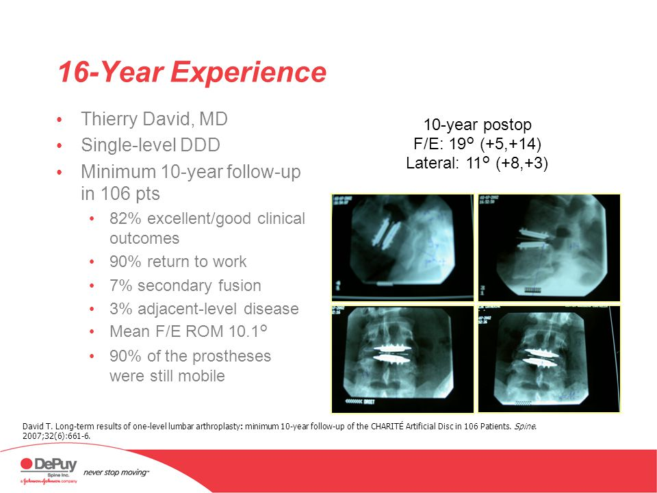 16-Year Experience Thierry David, MD Single-level DDD