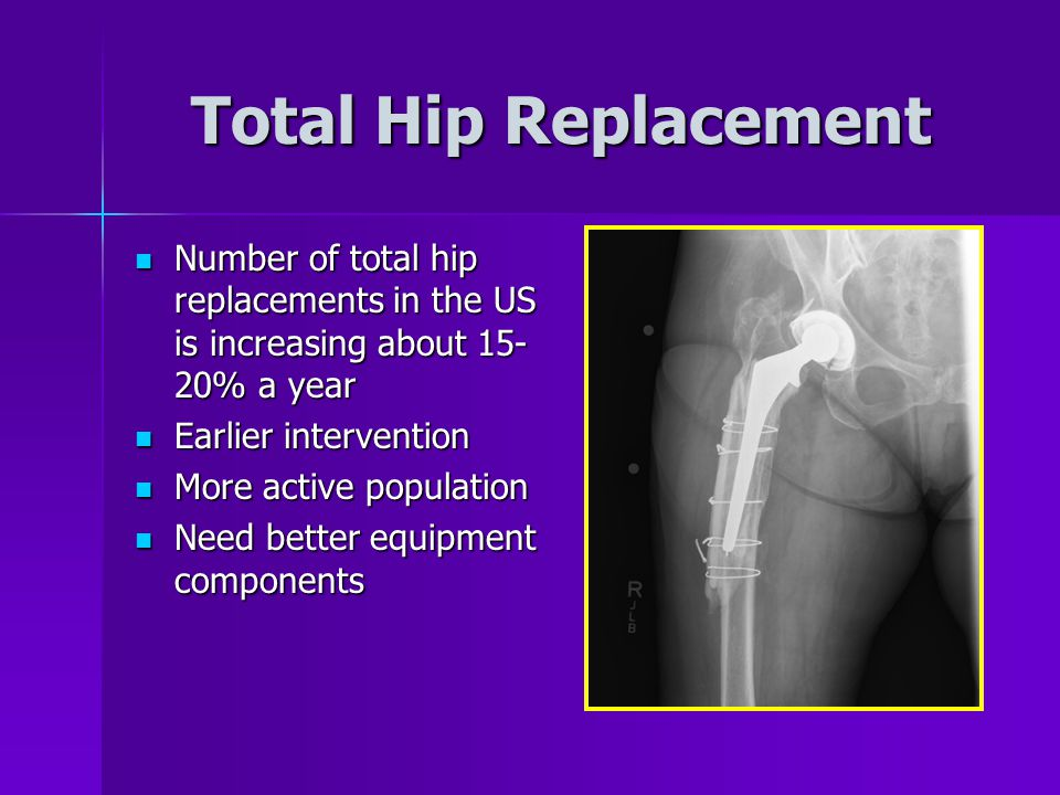 Total Hip Replacement Number of total hip replacements in the US is increasing about 15-20% a year.