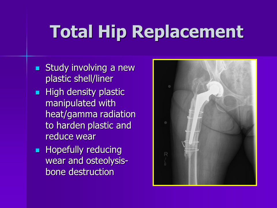 Total Hip Replacement Study involving a new plastic shell/liner