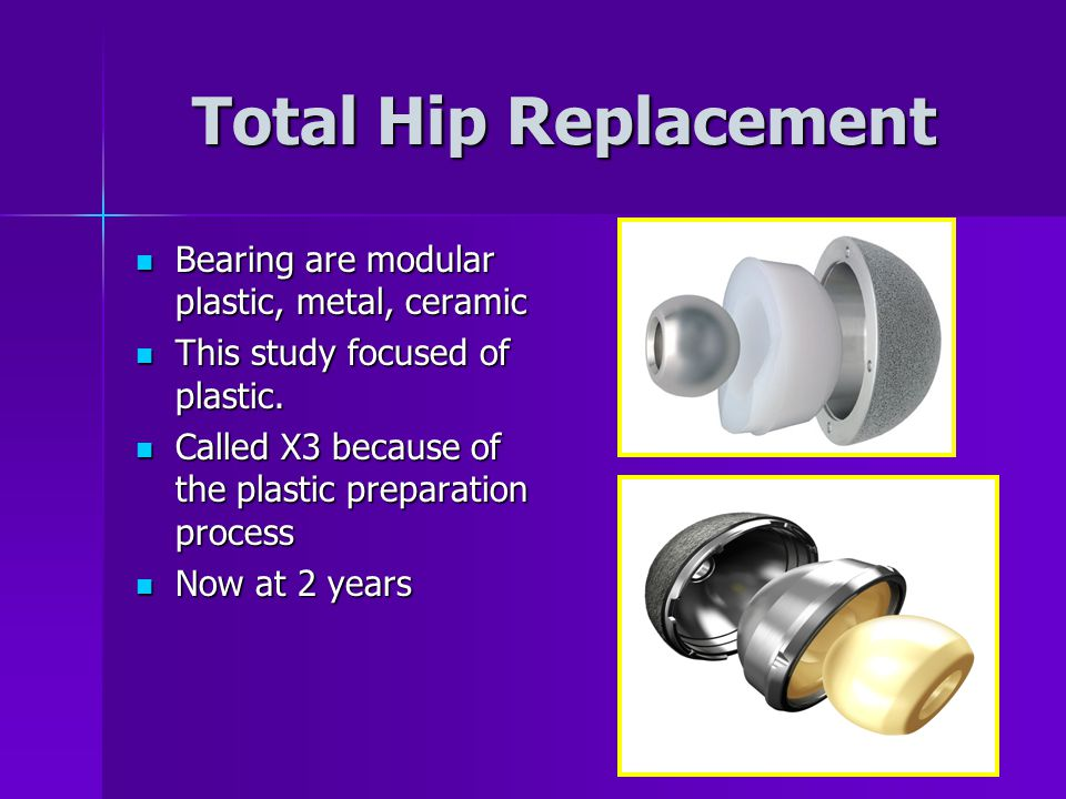 Total Hip Replacement Bearing are modular plastic, metal, ceramic