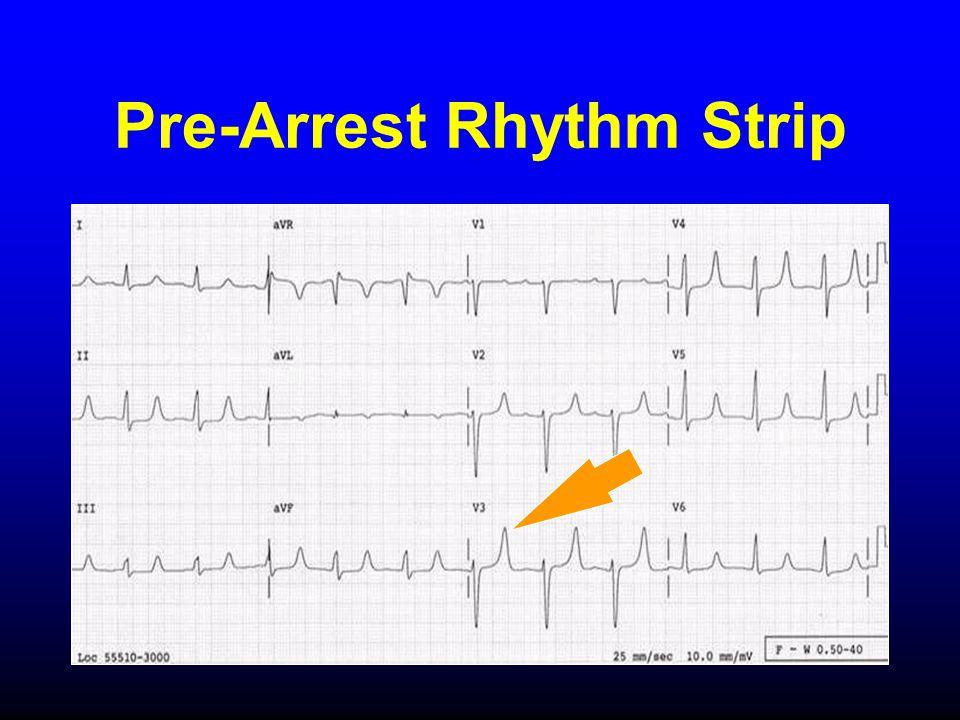Pre-Arrest Rhythm Strip