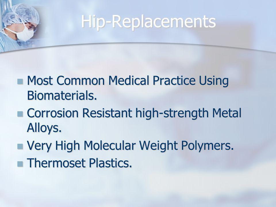 Hip-Replacements Most Common Medical Practice Using Biomaterials.