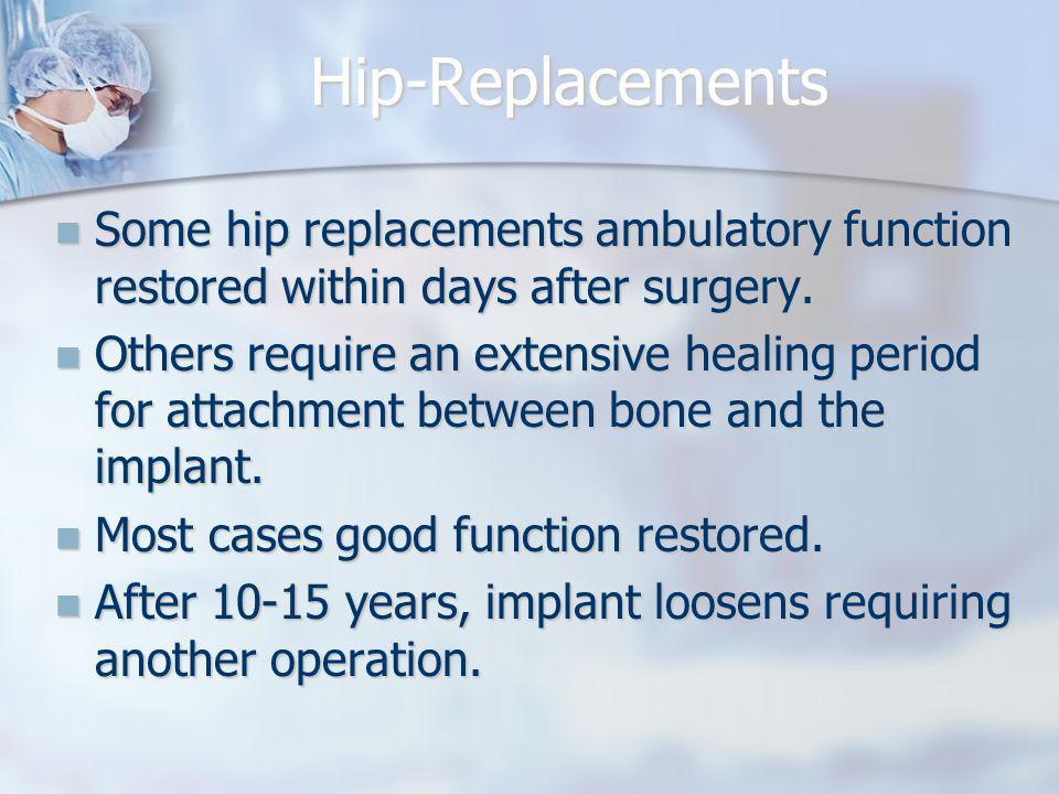 Hip-Replacements Some hip replacements ambulatory function restored within days after surgery.