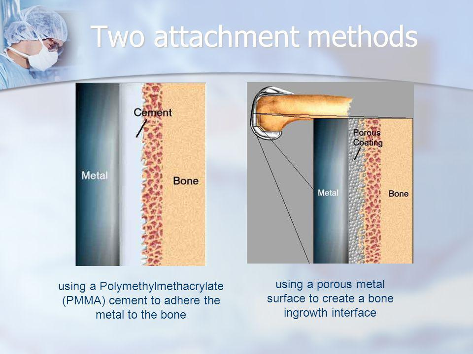Two attachment methods