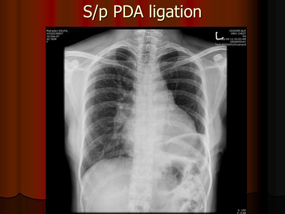 S/p PDA ligation