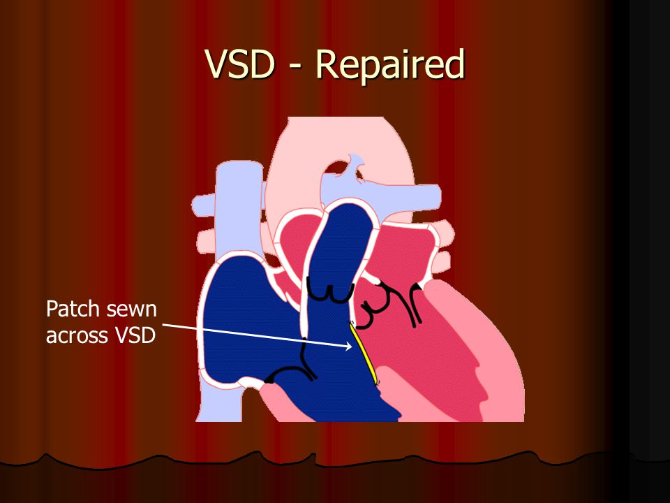 VSD - Repaired Patch sewn across VSD