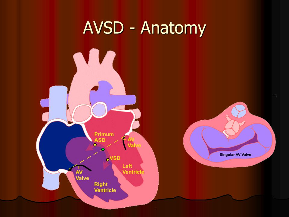 AVSD - Anatomy
