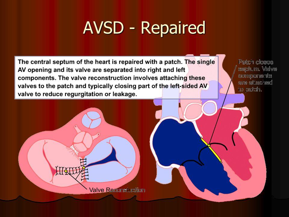 AVSD - Repaired