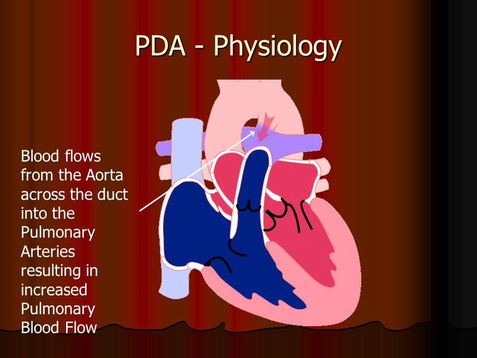 PDA - Physiology Blood flows from the Aorta across the duct into the Pulmonary Arteries resulting in increased Pulmonary Blood Flow.