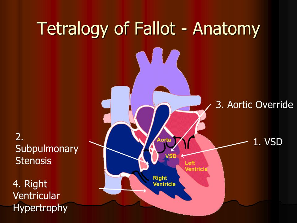 Tetralogy of Fallot - Anatomy