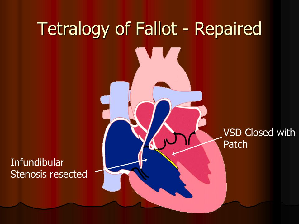 Tetralogy of Fallot - Repaired