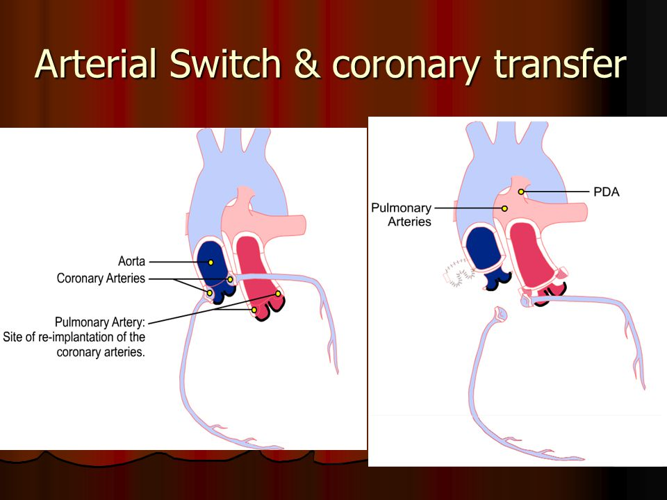 Arterial Switch & coronary transfer