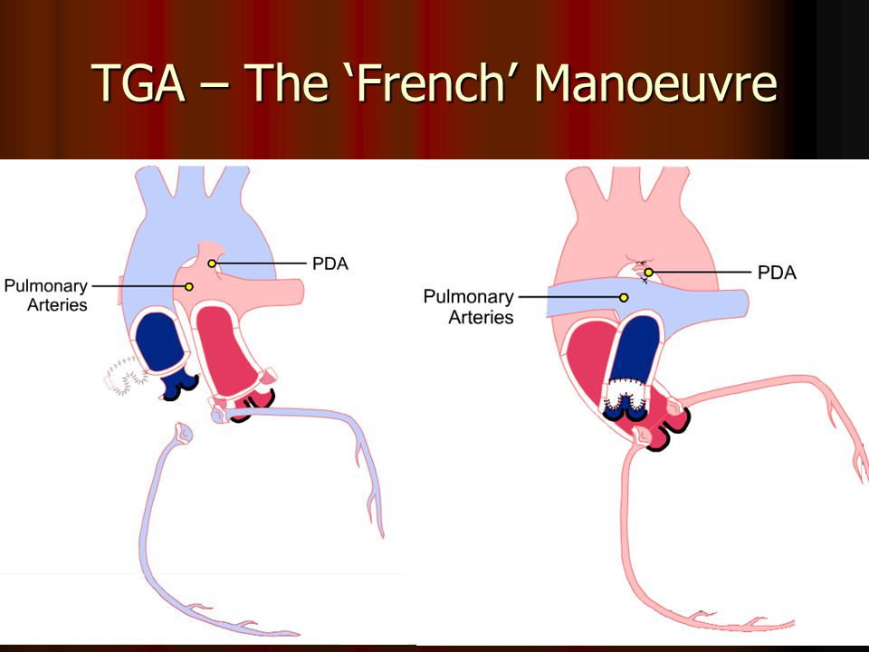 TGA – The 'French' Manoeuvre