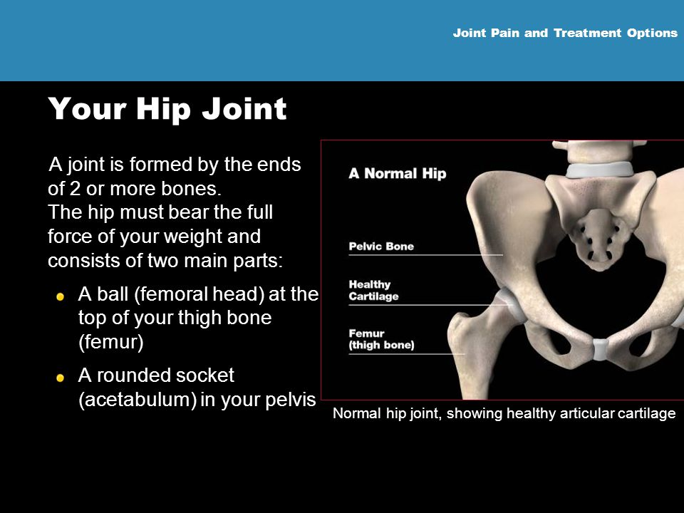 Normal hip joint, showing healthy articular cartilage