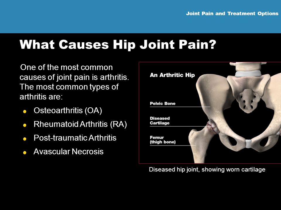 What Causes Hip Joint Pain