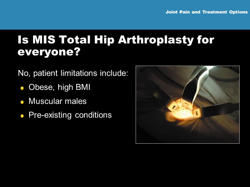 Is MIS Total Hip Arthroplasty for everyone