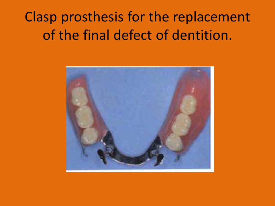 Clasp prosthesis for the replacement of the final defect of dentition.