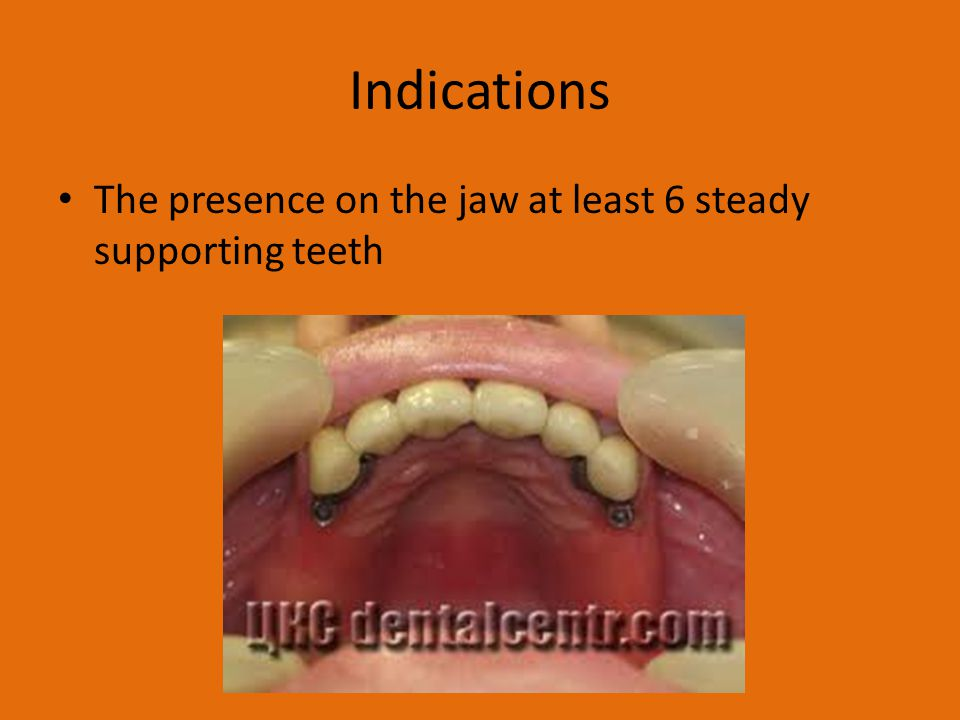 Indications The presence on the jaw at least 6 steady supporting teeth