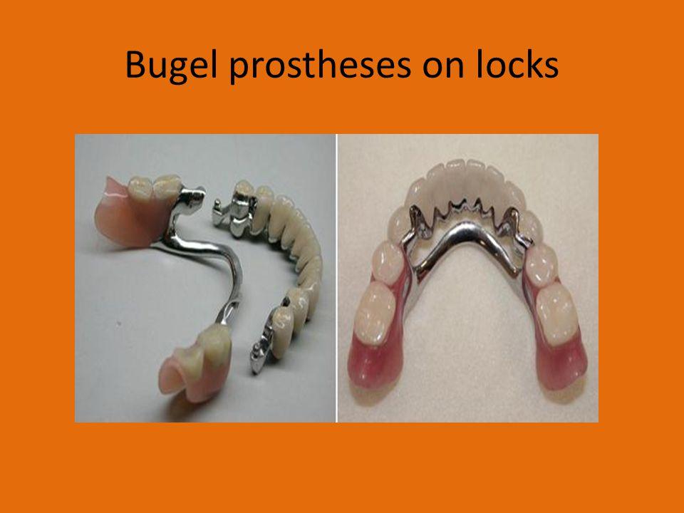 Bugel prostheses on locks