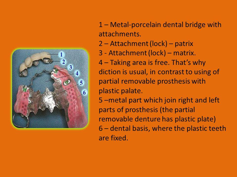 1 – Metal-porcelain dental bridge with attachments.