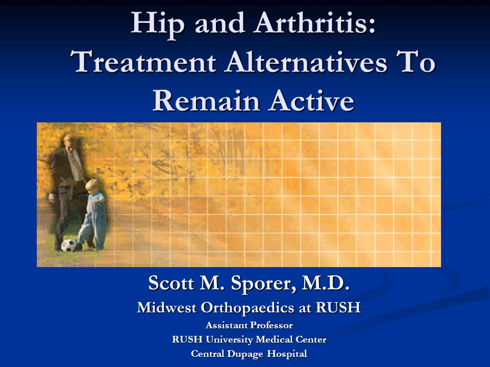 Hip and Arthritis: Treatment Alternatives To Remain Active