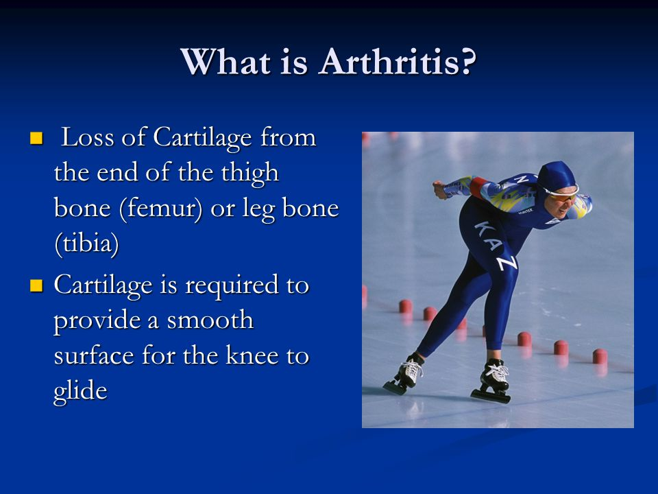 What is Arthritis Loss of Cartilage from the end of the thigh bone (femur) or leg bone (tibia)