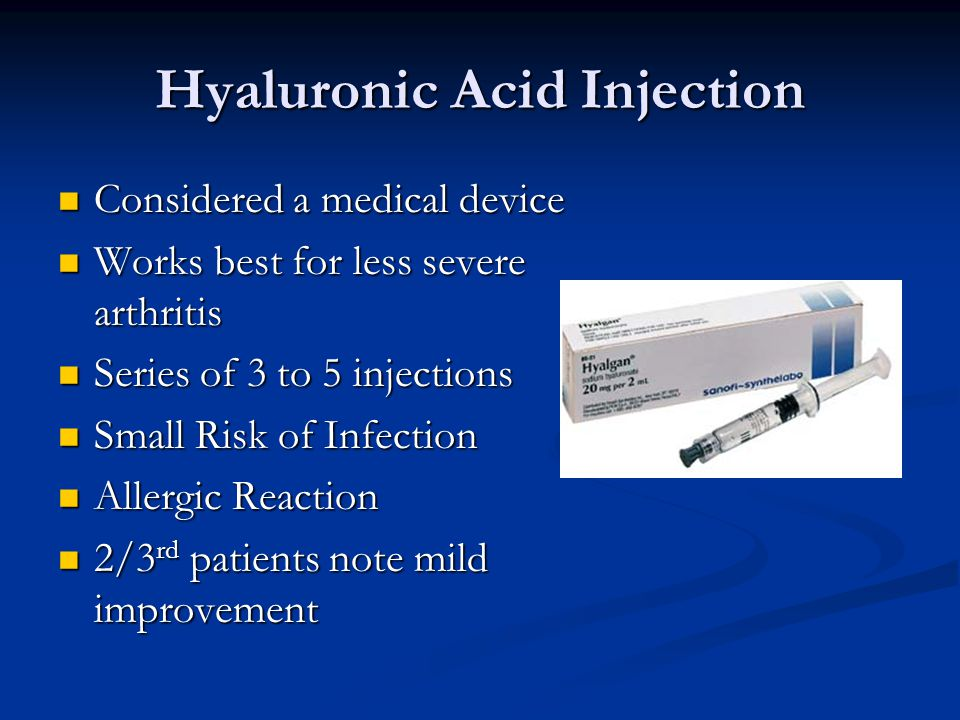 Hyaluronic Acid Injection