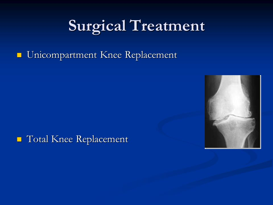 Surgical Treatment Unicompartment Knee Replacement