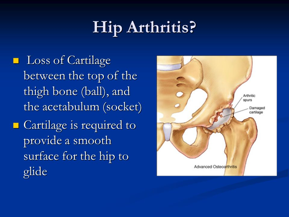 Hip Arthritis Loss of Cartilage between the top of the thigh bone (ball), and the acetabulum (socket)