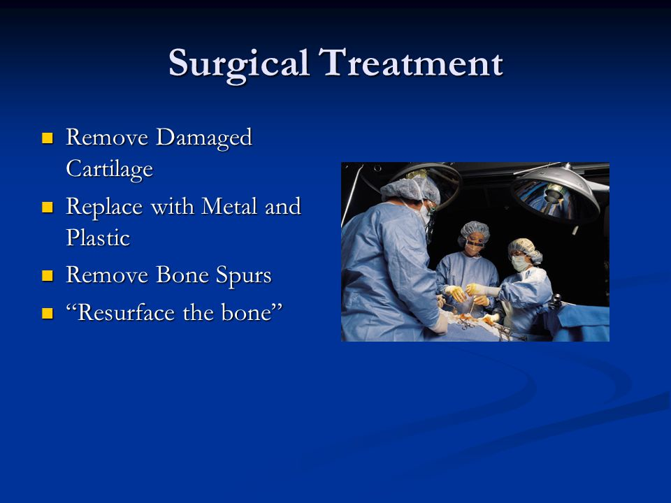 Surgical Treatment Remove Damaged Cartilage