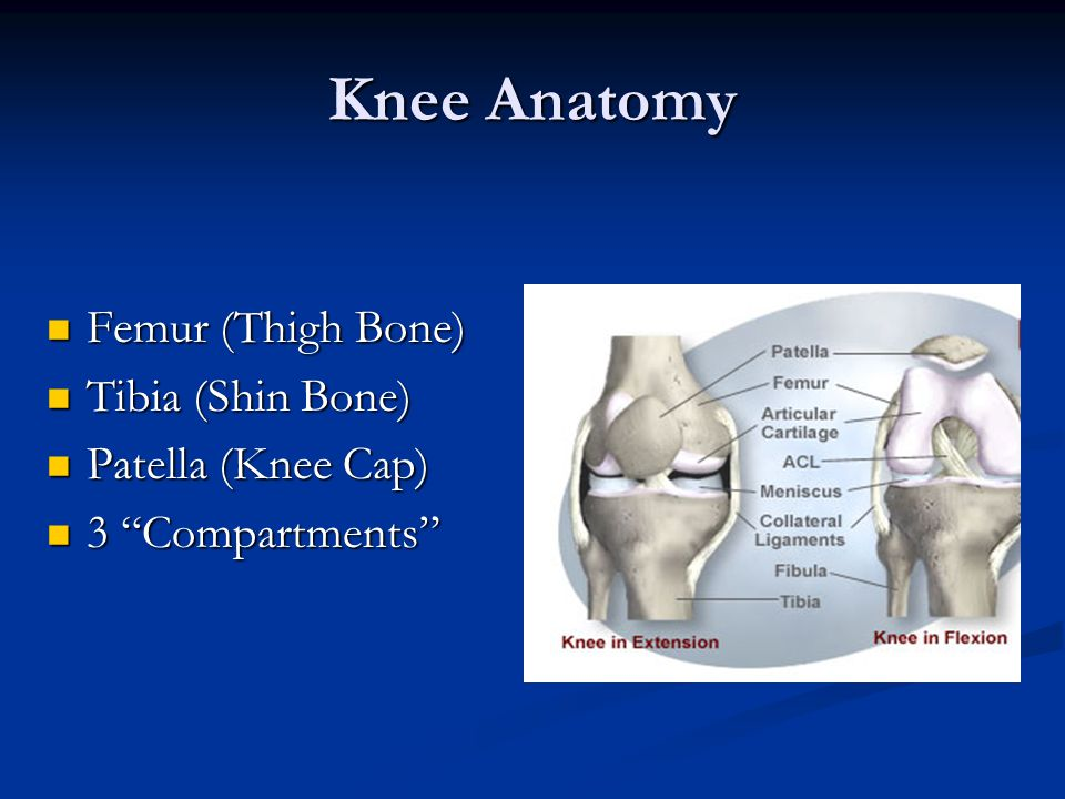 Knee Anatomy Femur (Thigh Bone) Tibia (Shin Bone) Patella (Knee Cap)