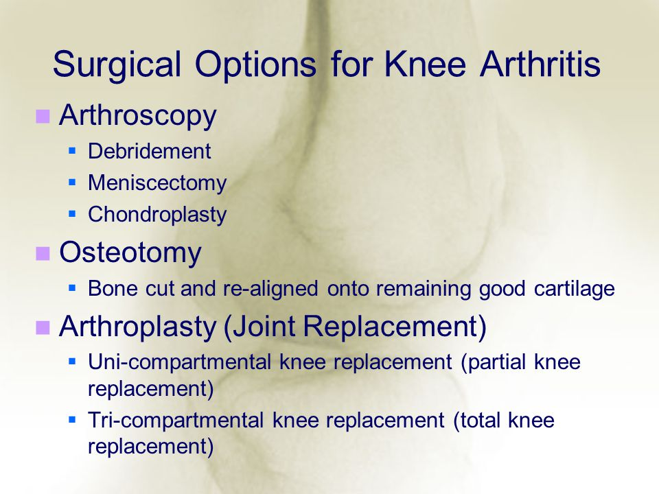 Surgical Options for Knee Arthritis