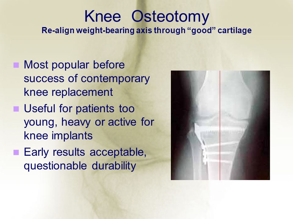 Knee Osteotomy Re-align weight-bearing axis through good cartilage