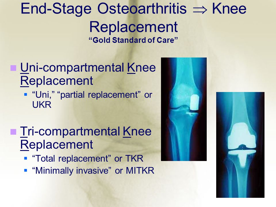 End-Stage Osteoarthritis  Knee Replacement Gold Standard of Care