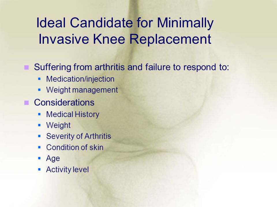 Ideal Candidate for Minimally Invasive Knee Replacement