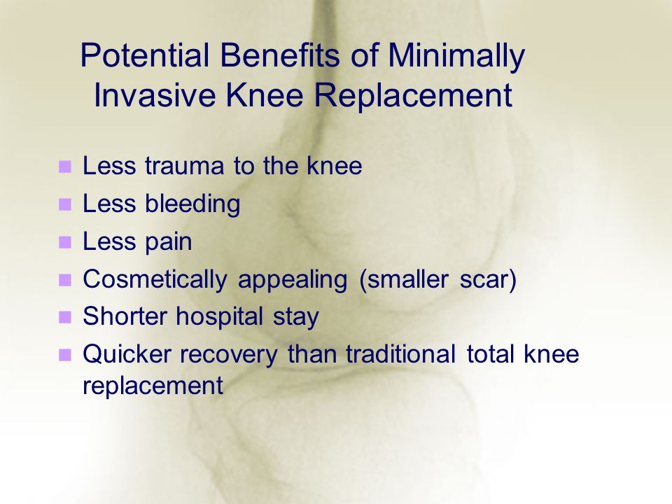 Potential Benefits of Minimally Invasive Knee Replacement