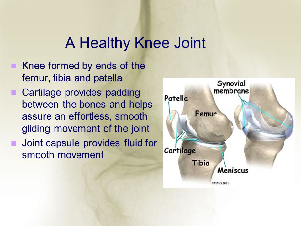 A Healthy Knee Joint Knee formed by ends of the femur, tibia and patella.