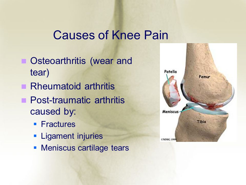 Causes of Knee Pain Osteoarthritis (wear and tear)