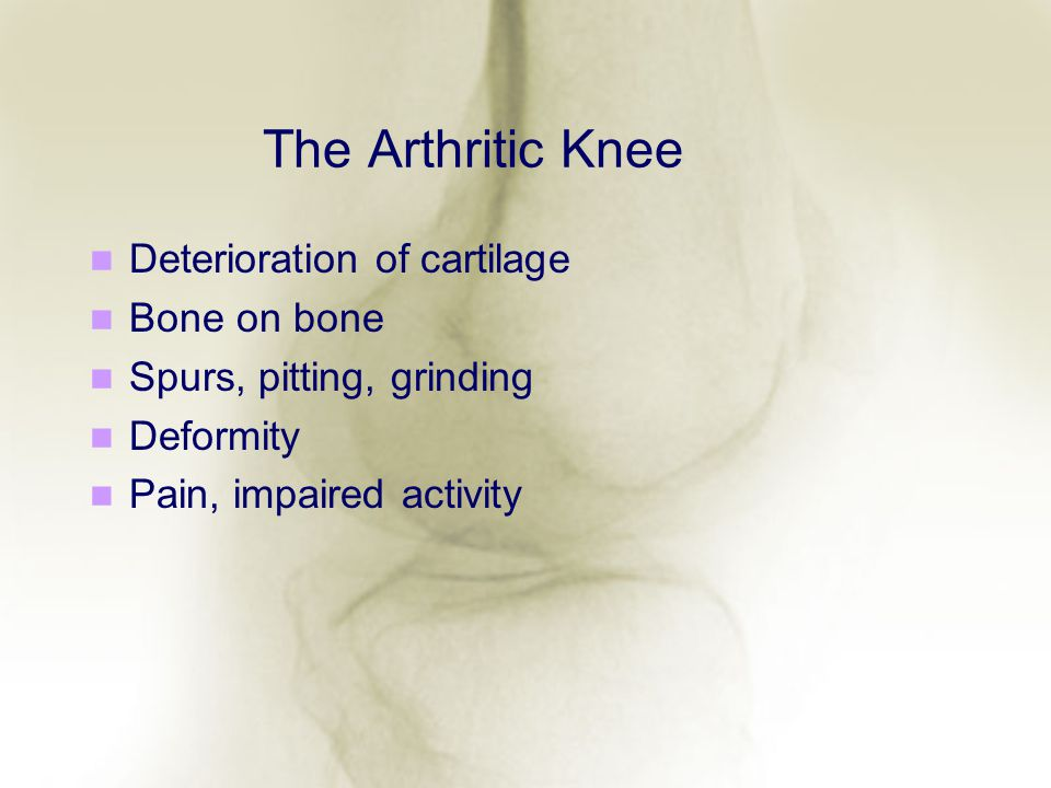 The Arthritic Knee Deterioration of cartilage Bone on bone