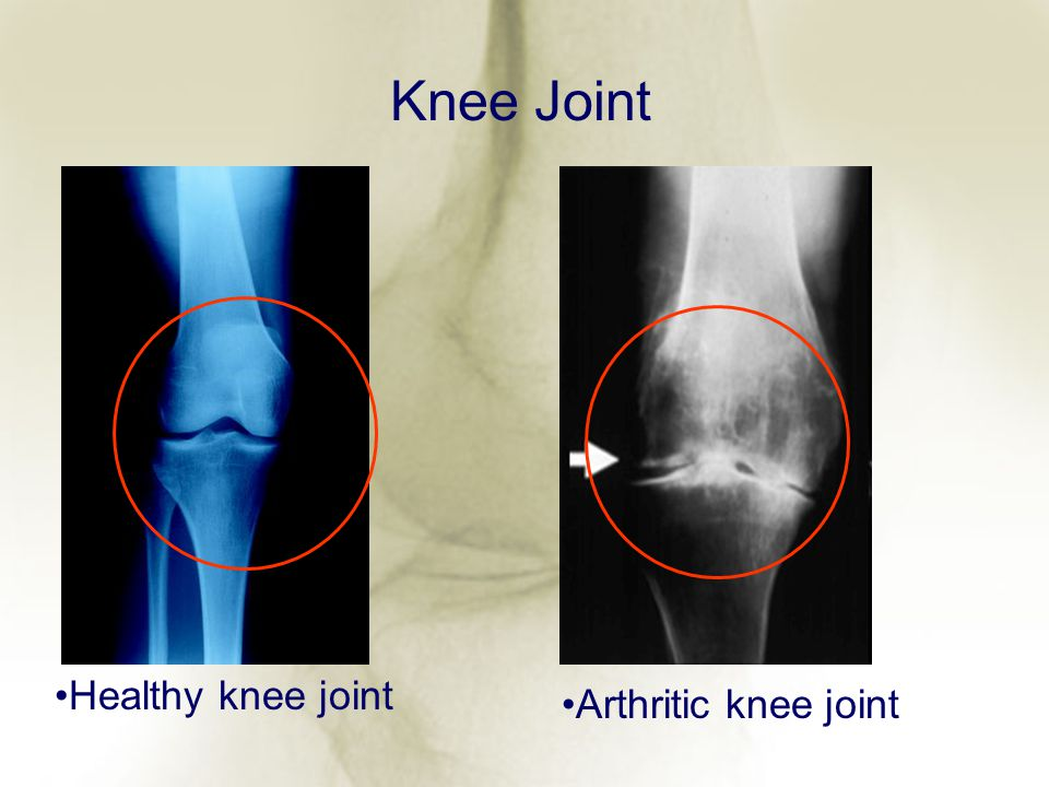 Knee Joint Healthy knee joint Arthritic knee joint