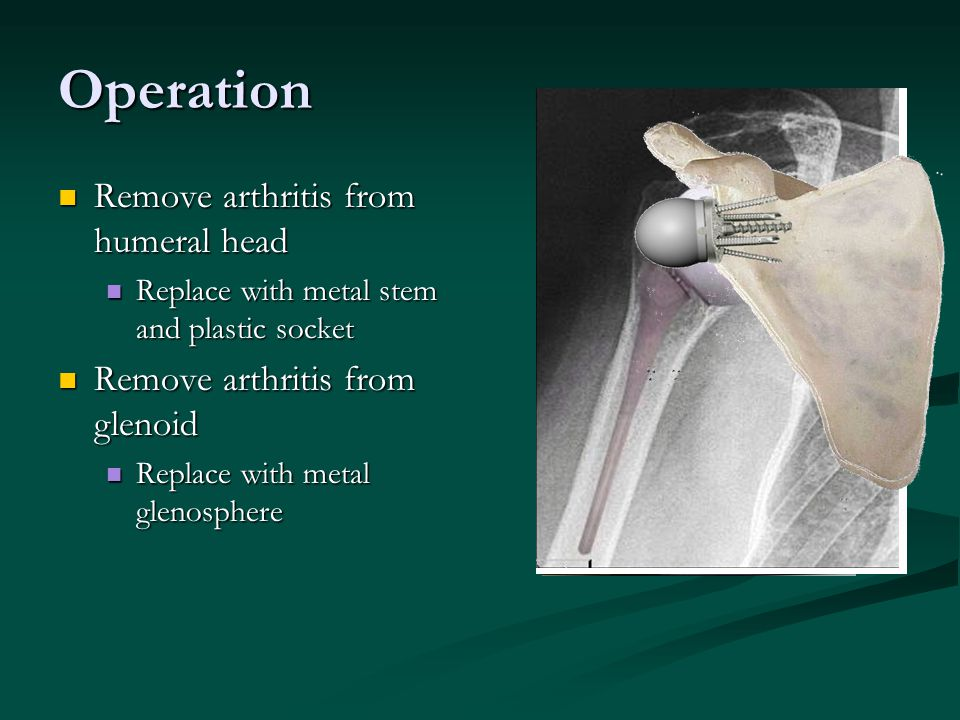 Operation Remove arthritis from humeral head