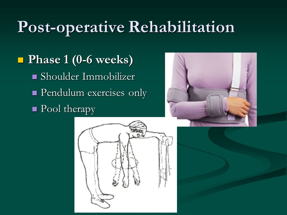 Post-operative Rehabilitation