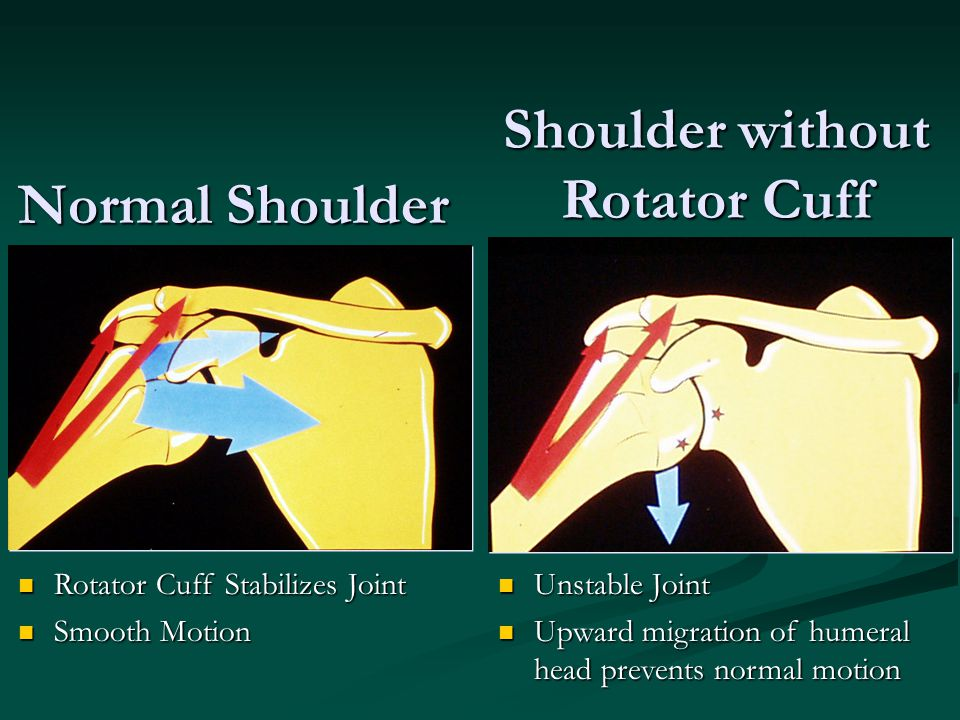 Shoulder without Rotator Cuff