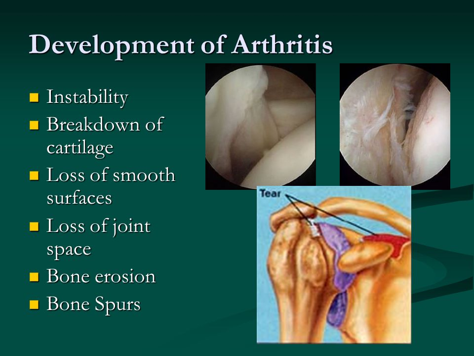Development of Arthritis
