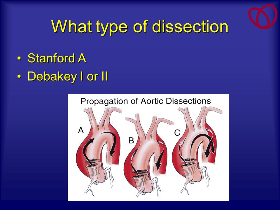 What type of dissection