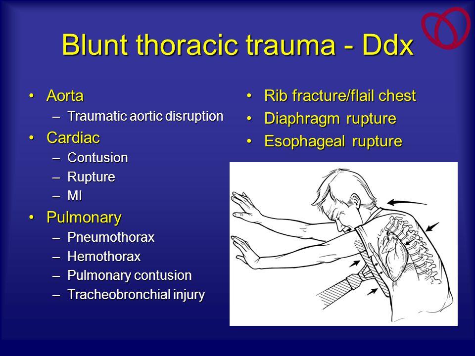 Blunt thoracic trauma - Ddx